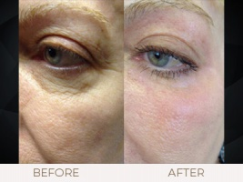CO2 Laser Resurfacing Gallery
